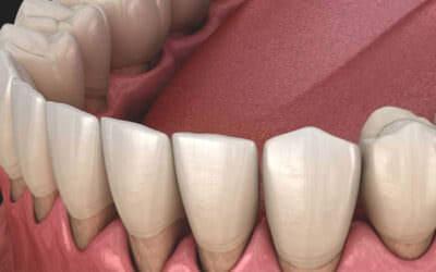 Hogyan kezeli a fogorvos a fogínysorvadást?