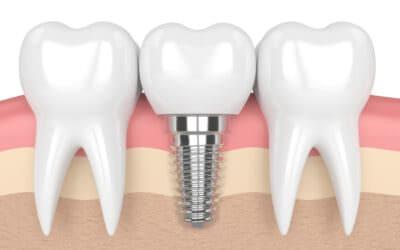 Modern fogászati szolgáltatások