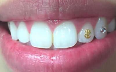 Szeretnél egy fogékszert?