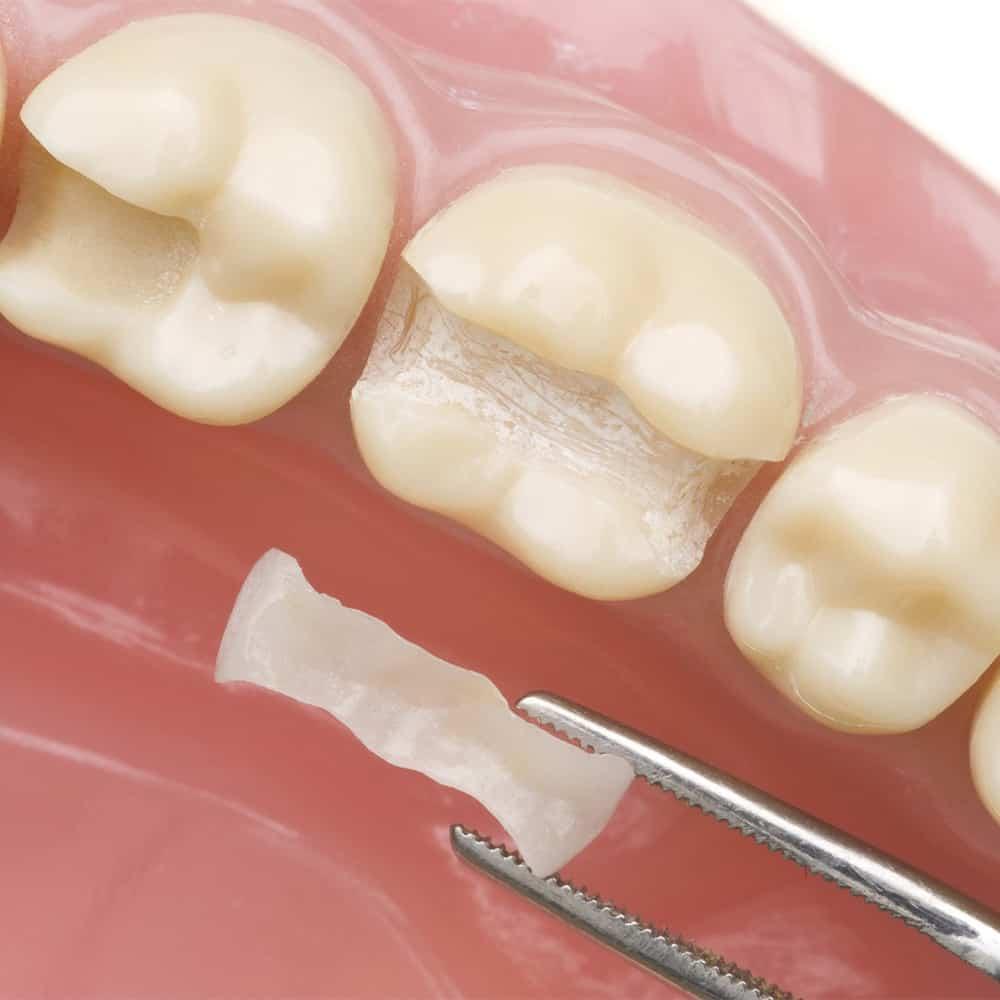 Konzerváló fogászat 3