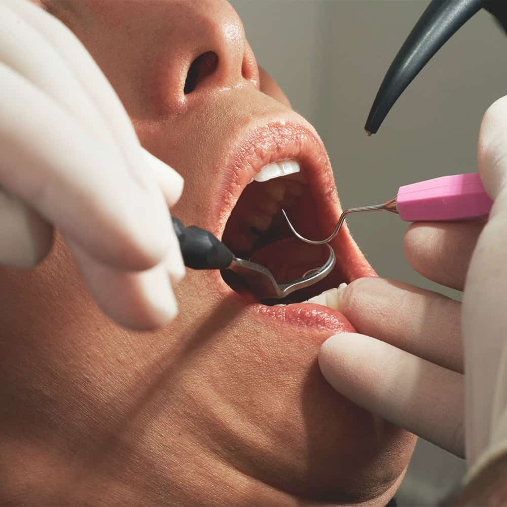 Konzerváló fogászat 4
