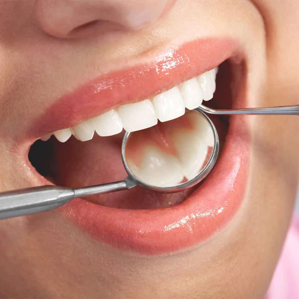 Konzerváló fogászat 8