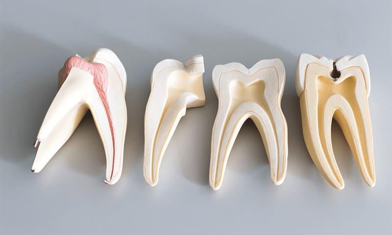 Szájsebészet fogak