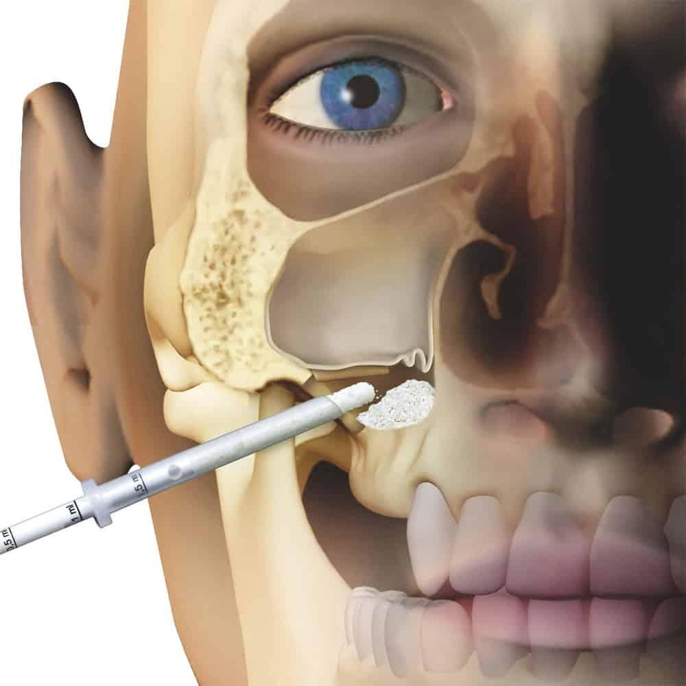 Szájsebészet csontpótlás menete