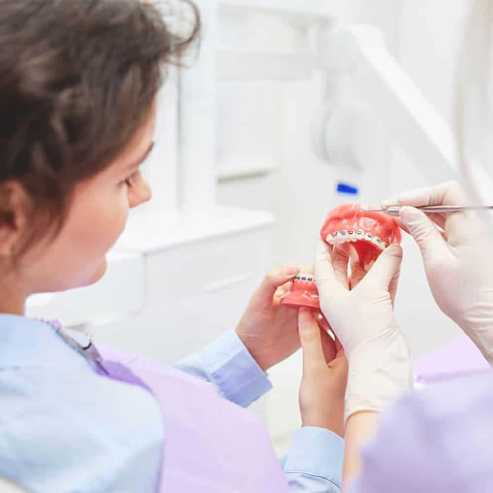 Kezelési terv általános fogszabályozáshoz