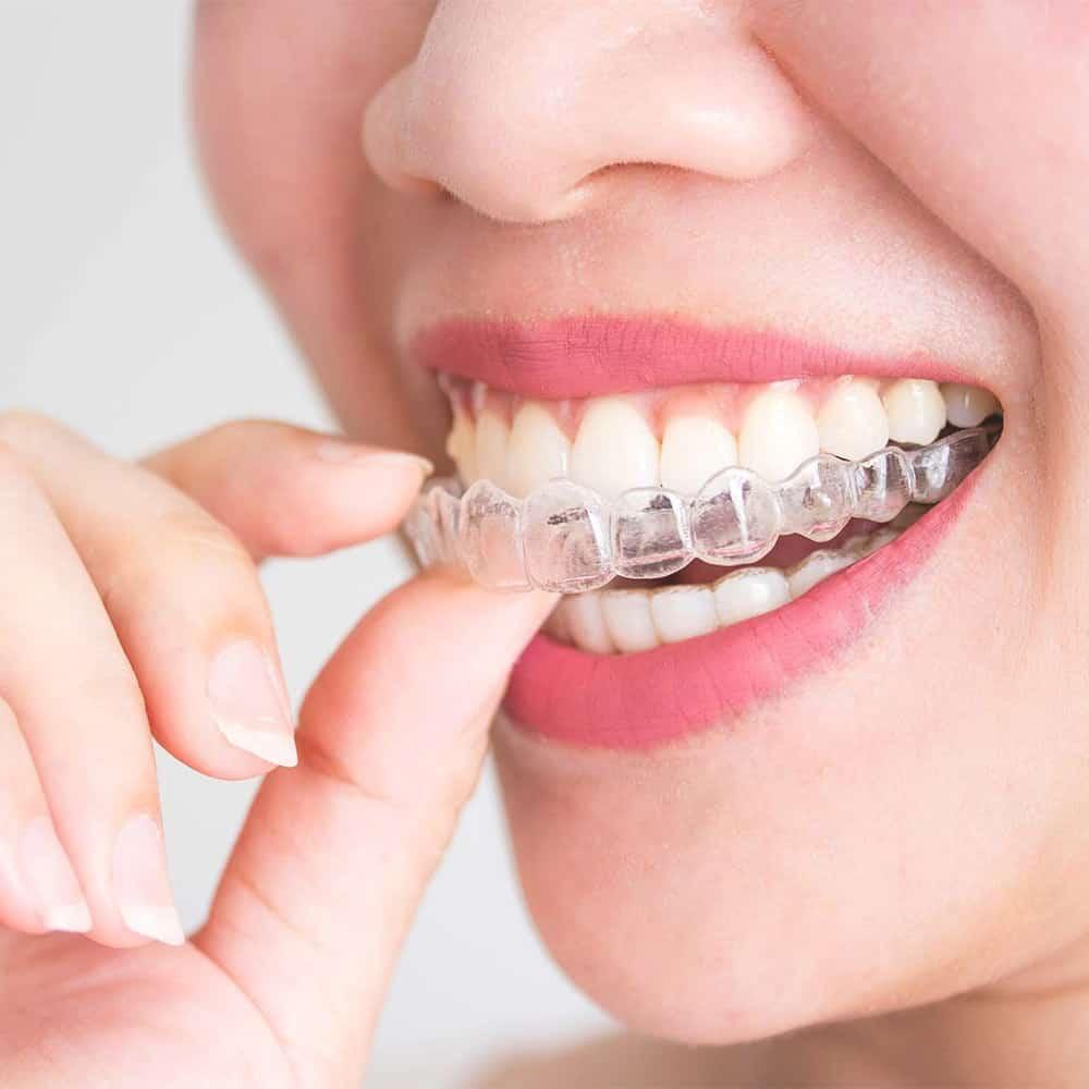 Átlátszó fogszabályozó készítése