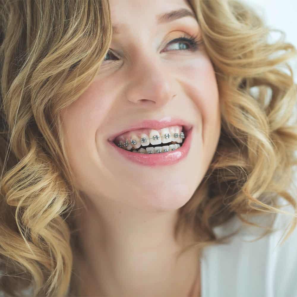 Általános fogszabályozás a tökéletes mosolyért