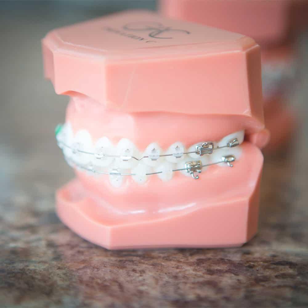 Esztétikus fogszabályozók felépítése