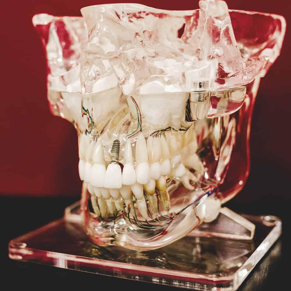 Fogpótlások koponya