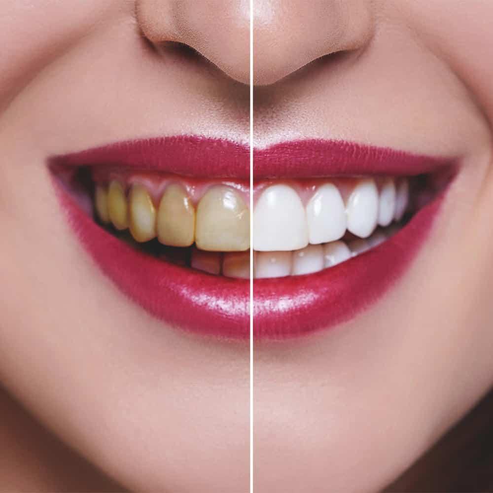 kozmetikai fogfehérítés előtte és utána