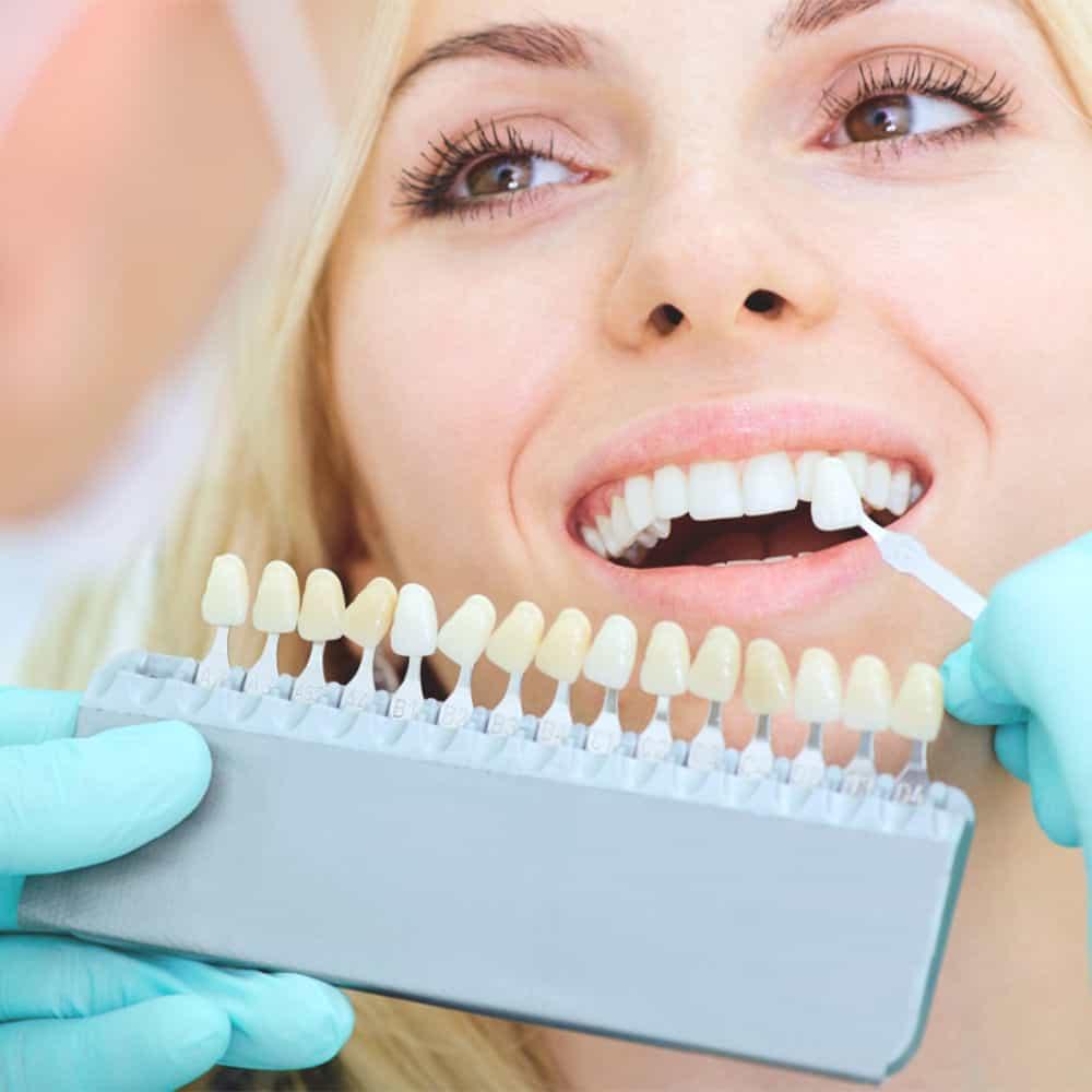 kozmetikai fogfehérítés tanácsadás