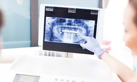 Fogászati röntgen vizsgálata