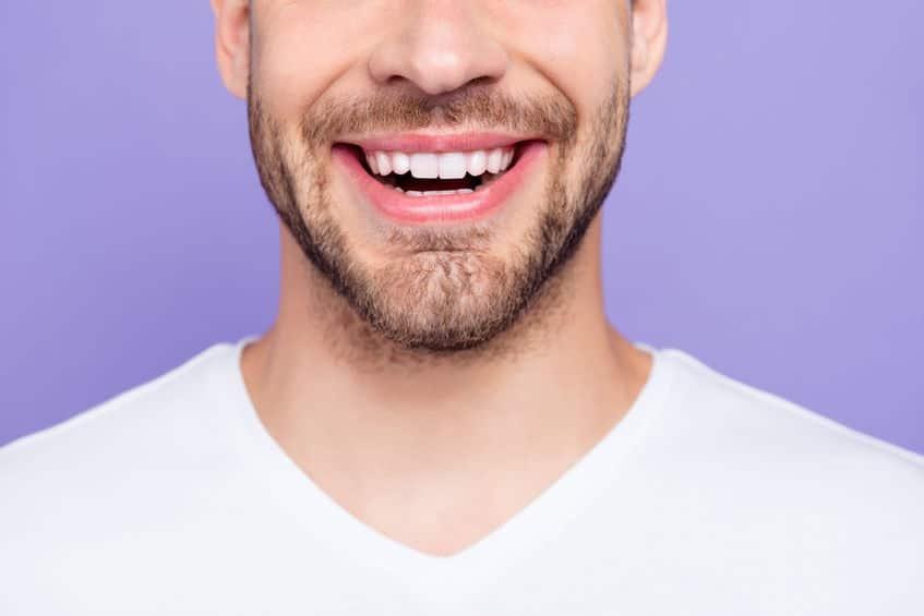 Tökéletes, szép mosoly