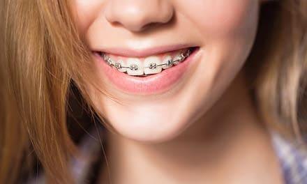 Fogászati fogszabályozás