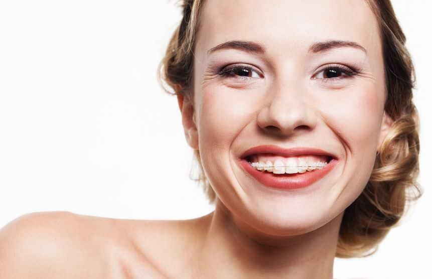 Tökéletes fiatal fogsor, fogszabályozó 3