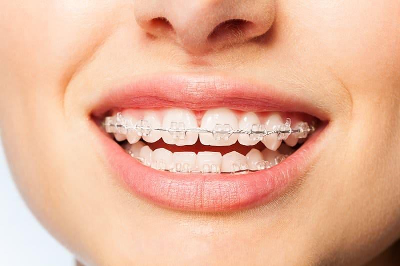 Tökéletes fiatal fogsor, fogszabályozó 4