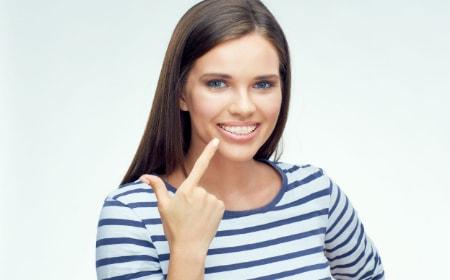 Akciók a fogszabályozásra