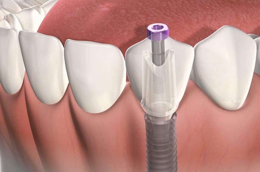 Fogászati kezelés Implantátum rögzítése