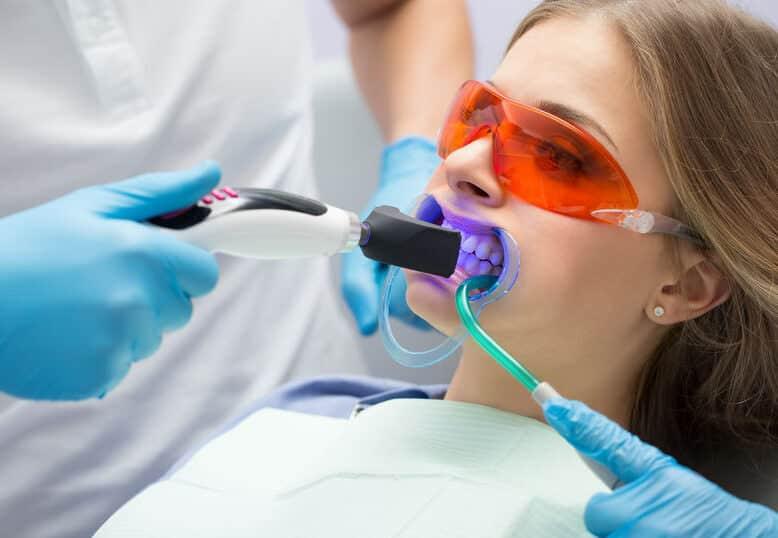 Klinikai fogfehérítés ultraibolya lámpával