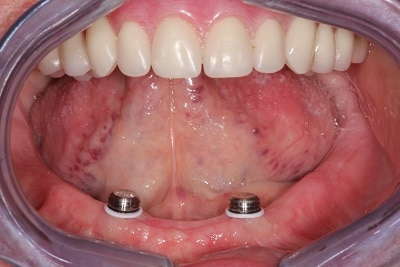 Completed Overdenture 25