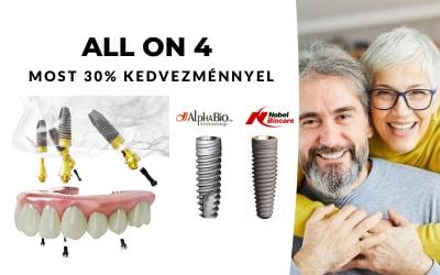 All on 4 fogászati kezelés